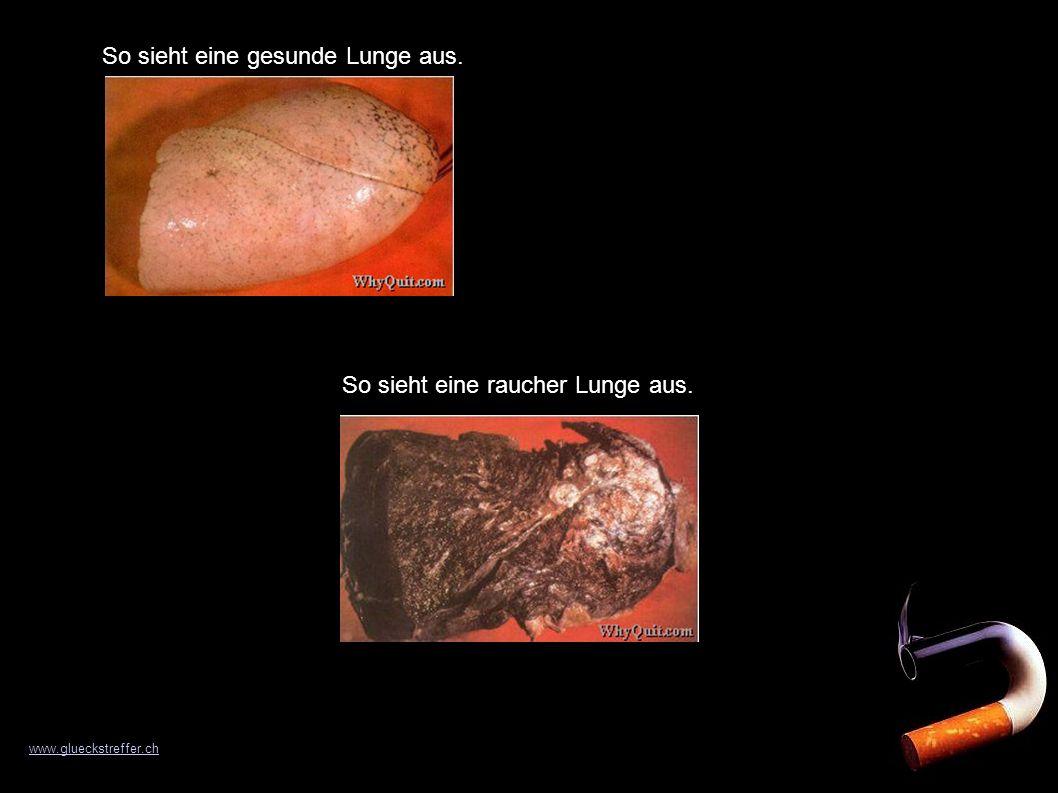 So sieht eine gesunde Lunge aus. So sieht eine raucher Lunge aus. www.glueckstreffer.ch