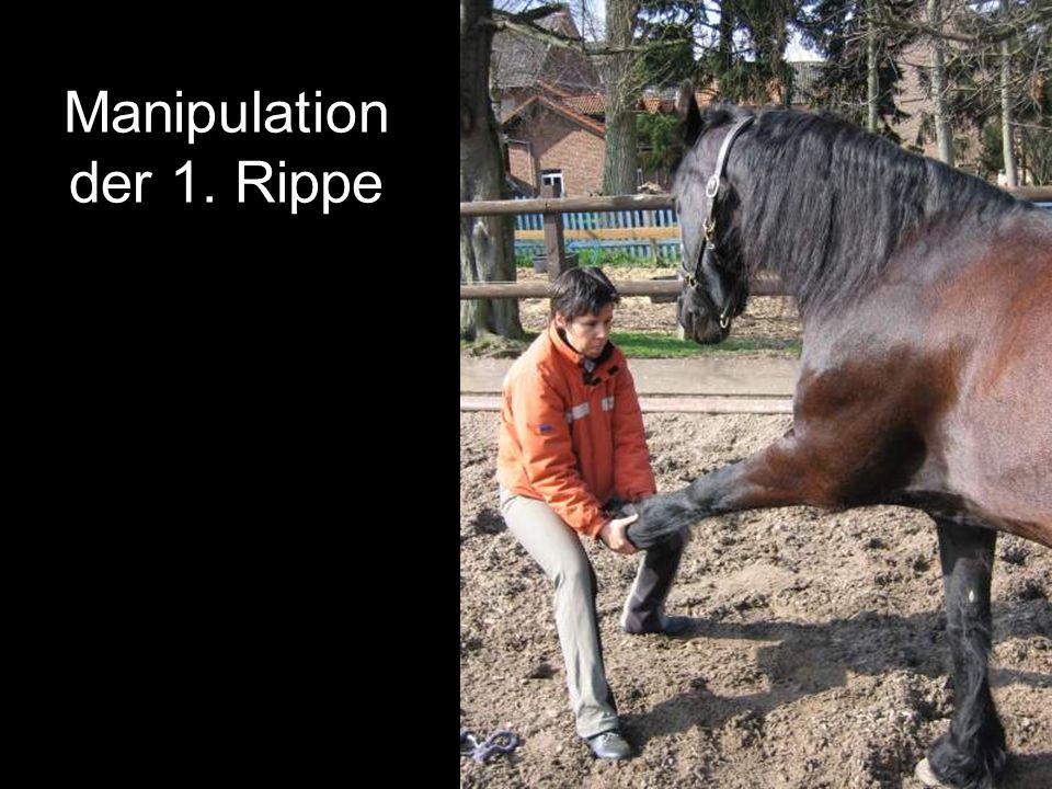 Manipulation der 1. Rippe