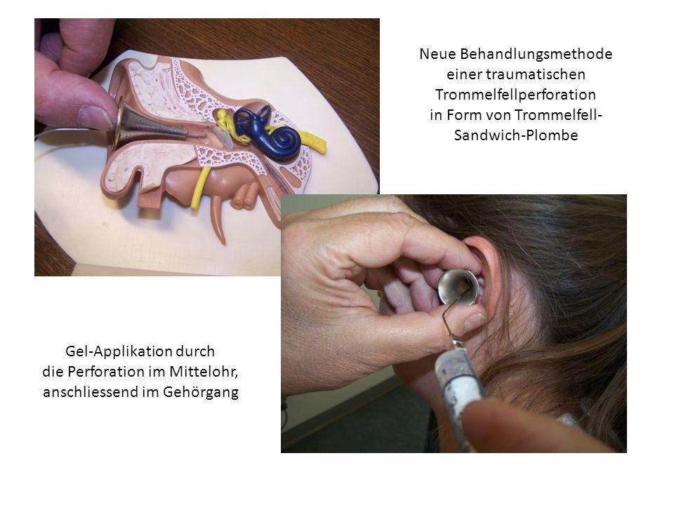 Neue Behandlungsmethode einer traumatischen Trommelfellperforation in Form von Trommelfell- Sandwich-Plombe Gel-Applikation durch die Perforation im M