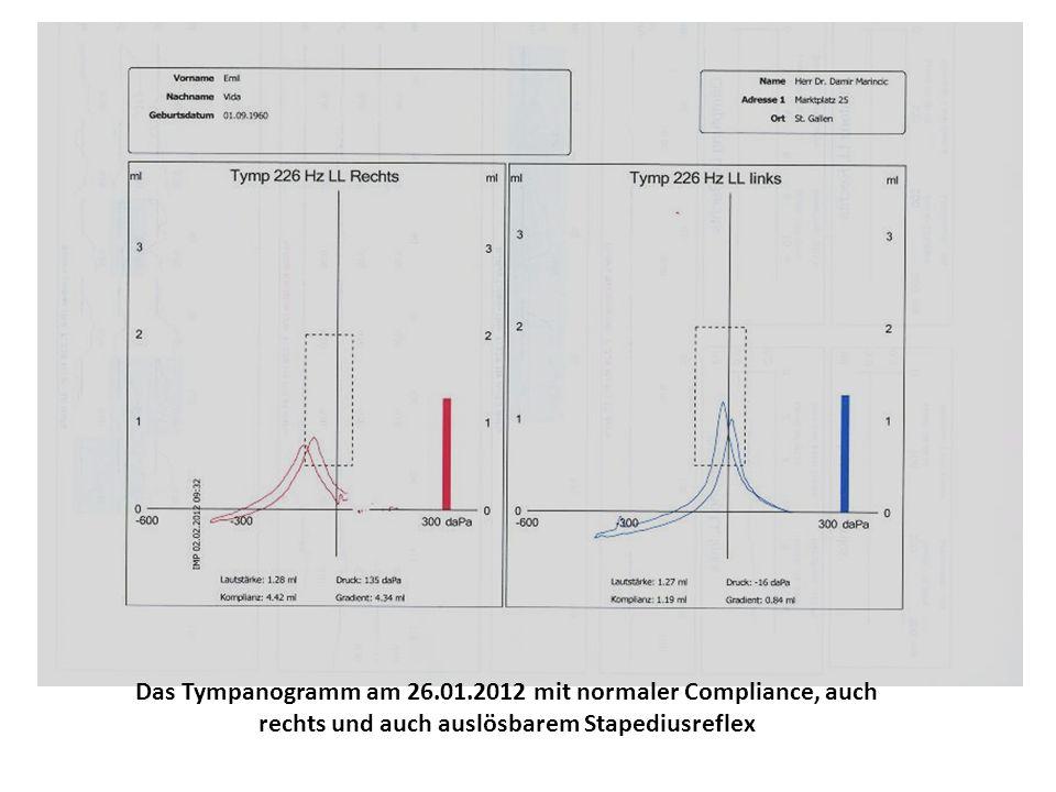 Abschlussreintonaudiogramm am 02.02.2012 mit minimer Asymmetrie der Hörschwelle ohne Schallleitungskomponente, welche auf Knalltrauma und leichte Innenohrschädigung zurückzuführen ist.
