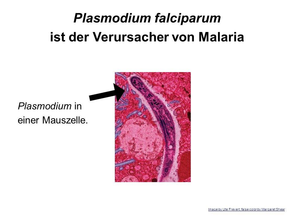 Plasmodium falciparum ist der Verursacher von Malaria Plasmodium in einer Mauszelle. Image by Ute Frevert; false color by Margaret Shear