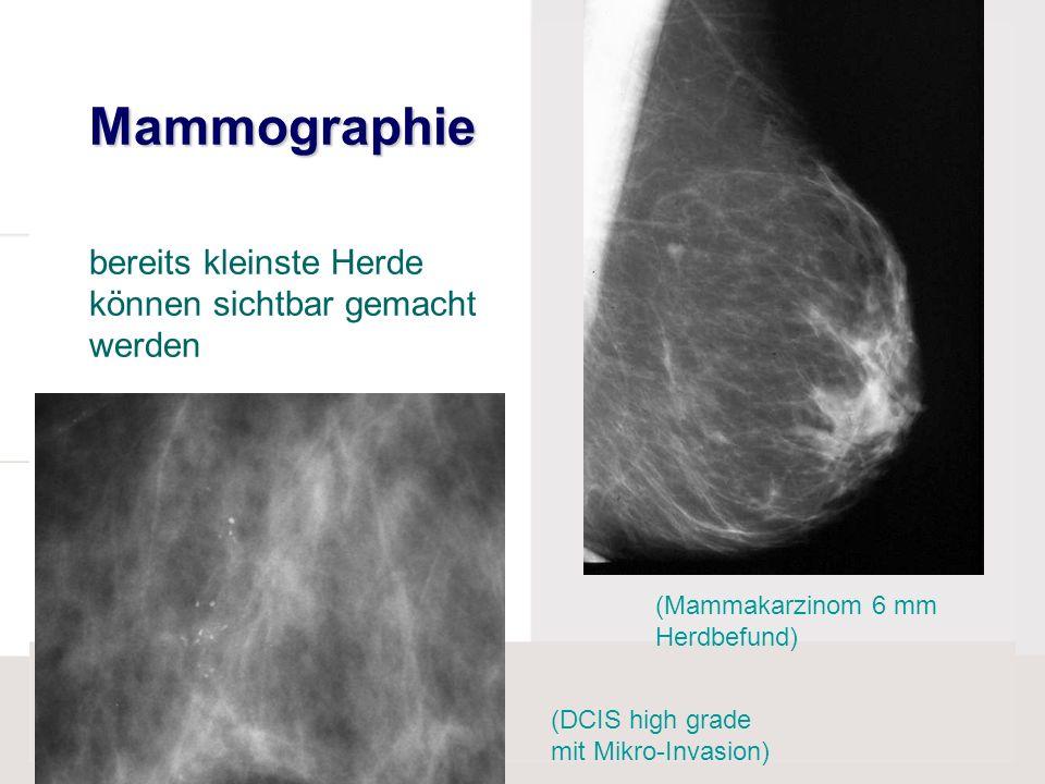 Mammographie Mammographie bereits kleinste Herde können sichtbar gemacht werden (Mammakarzinom 6 mm Herdbefund) (DCIS high grade mit Mikro-Invasion)