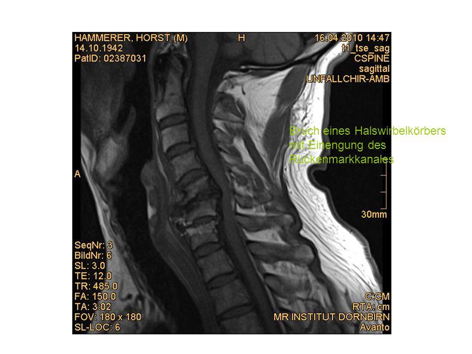 Beckenverletzung Der Beckenring ist ein stabiler Ring der aus mehreren Knochen besteht, die durch straffe Bandverbindungen miteinander verbunden sind.