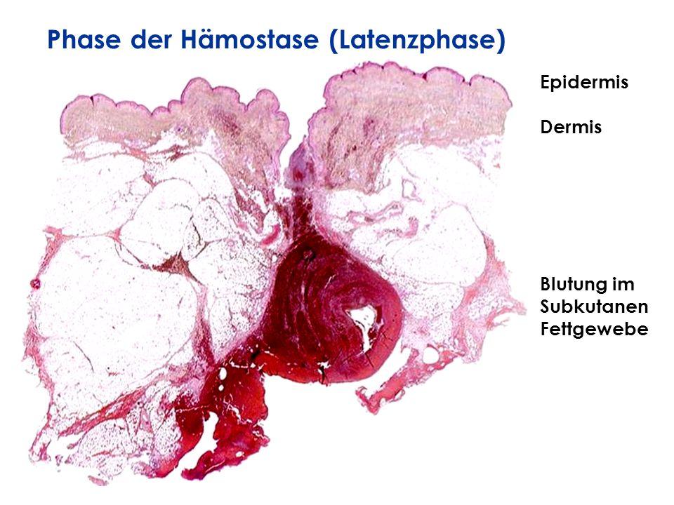 Epidermis Dermis Blutung im Subkutanen Fettgewebe Phase der Hämostase (Latenzphase)