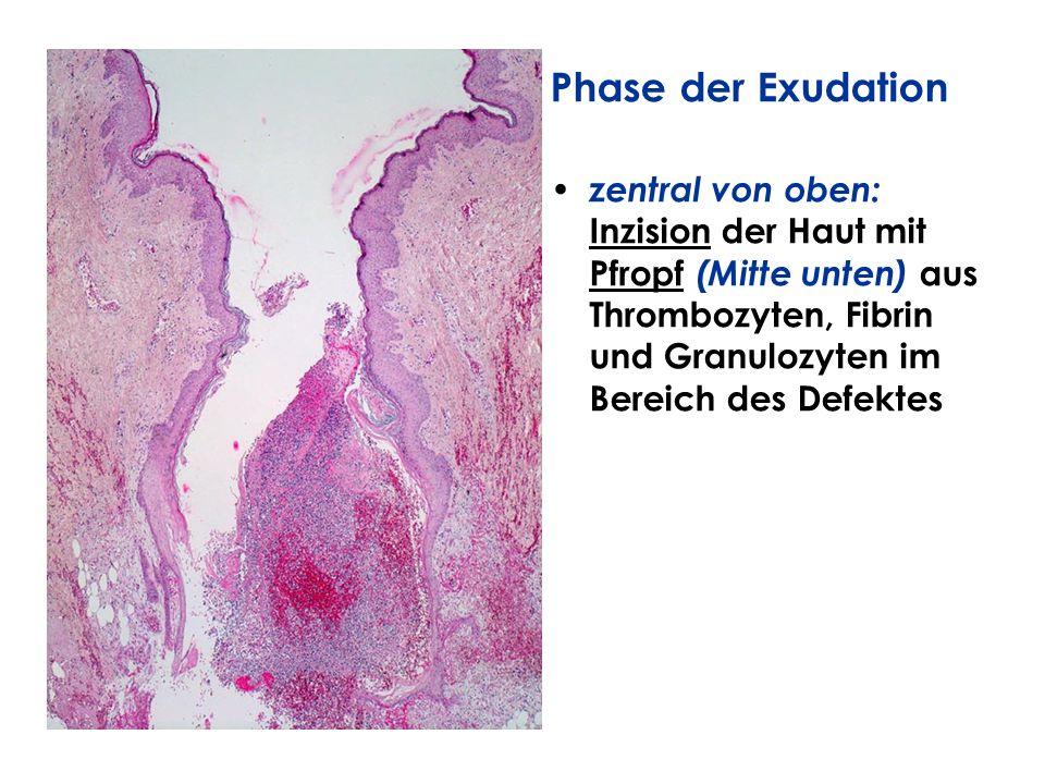 Phase der Exudation zentral von oben: Inzision der Haut mit Pfropf (Mitte unten) aus Thrombozyten, Fibrin und Granulozyten im Bereich des Defektes