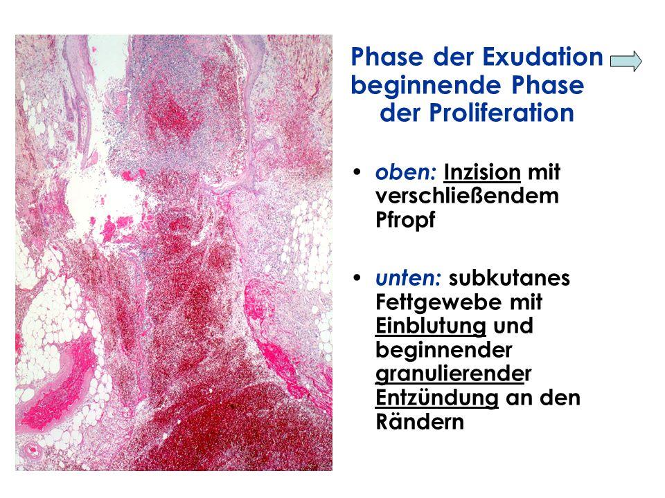 Phase der Exudation beginnende Phase der Proliferation oben: Inzision mit verschließendem Pfropf unten: subkutanes Fettgewebe mit Einblutung und begin