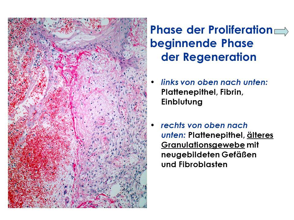 Phase der Proliferation beginnende Phase der Regeneration links von oben nach unten: Plattenepithel, Fibrin, Einblutung rechts von oben nach unten: Pl