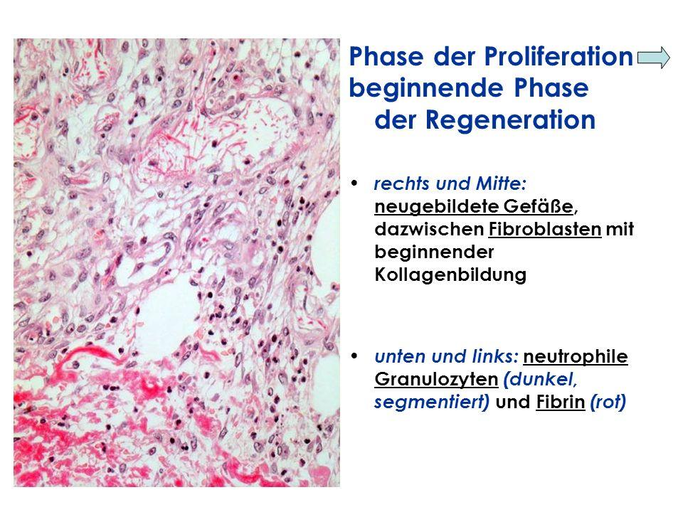 Phase der Proliferation beginnende Phase der Regeneration rechts und Mitte: neugebildete Gefäße, dazwischen Fibroblasten mit beginnender Kollagenbildu