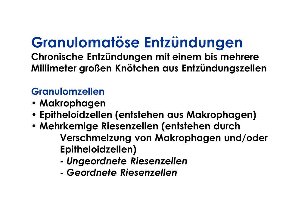 Granulomatöse Entzündungen Chronische Entzündungen mit einem bis mehrere Millimeter großen Knötchen aus Entzündungszellen Granulomzellen Makrophagen E