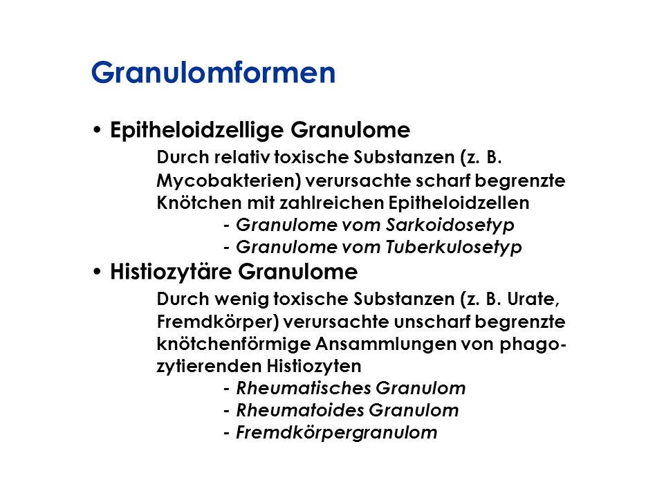 Granulomformen Epitheloidzellige Granulome Durch relativ toxische Substanzen (z. B. Mycobakterien) verursachte scharf begrenzte Knötchen mit zahlreich
