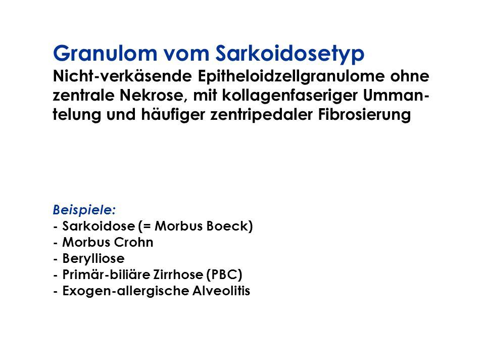 Granulom vom Sarkoidosetyp Nicht-verkäsende Epitheloidzellgranulome ohne zentrale Nekrose, mit kollagenfaseriger Umman- telung und häufiger zentripeda