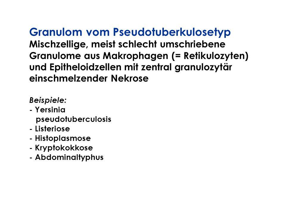 Granulom vom Pseudotuberkulosetyp Mischzellige, meist schlecht umschriebene Granulome aus Makrophagen (= Retikulozyten) und Epitheloidzellen mit zentr