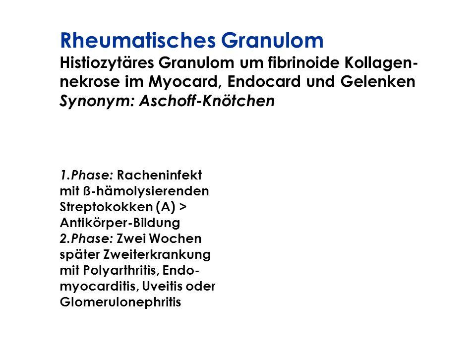 Rheumatisches Granulom Histiozytäres Granulom um fibrinoide Kollagen- nekrose im Myocard, Endocard und Gelenken Synonym: Aschoff-Knötchen 1.Phase: Rac