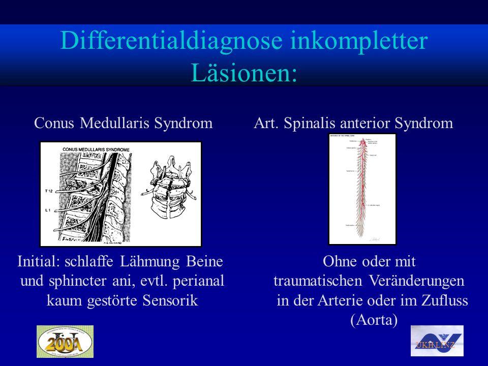 UKH LINZ Differentialdiagnose inkompletter Läsionen: Conus Medullaris Syndrom Initial: schlaffe Lähmung Beine und sphincter ani, evtl. perianal kaum g