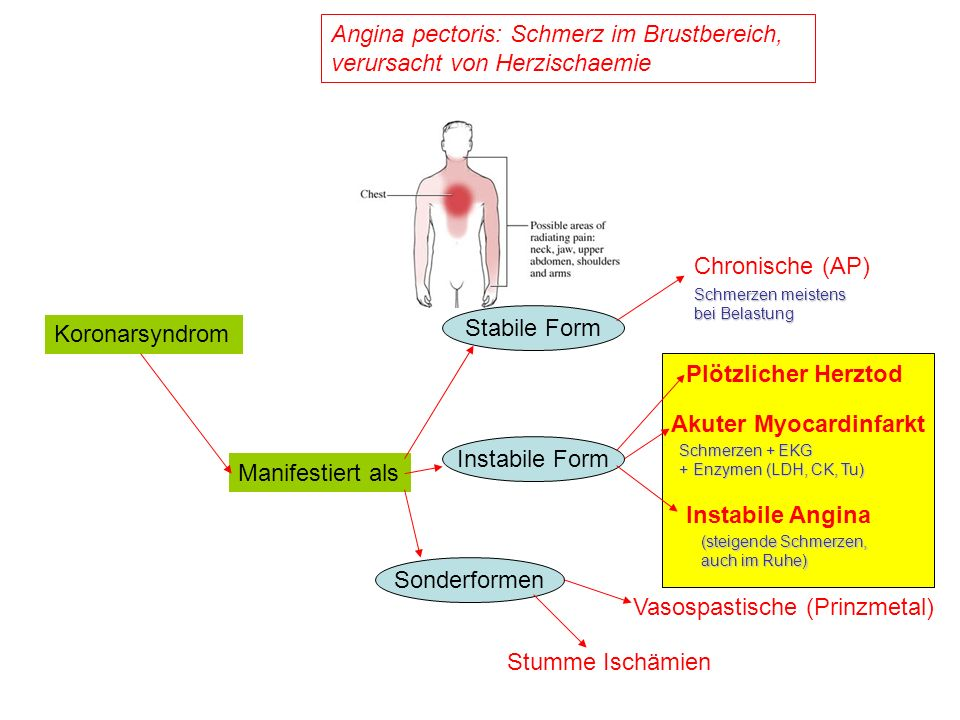 Koronarsyndrom Angina pectoris: Schmerz im Brustbereich, verursacht von Herzischaemie Manifestiert als Stabile Form Instabile Form Sonderformen Chroni