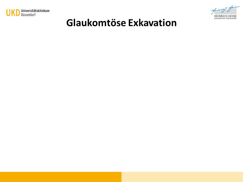 Glaukomtöse Exkavation