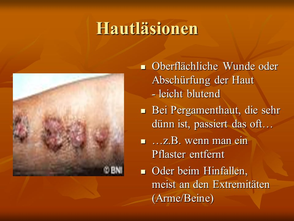 Hautläsionen Oberflächliche Wunde oder Abschürfung der Haut - leicht blutend Oberflächliche Wunde oder Abschürfung der Haut - leicht blutend Bei Pergamenthaut, die sehr dünn ist, passiert das oft… Bei Pergamenthaut, die sehr dünn ist, passiert das oft… …z.B.
