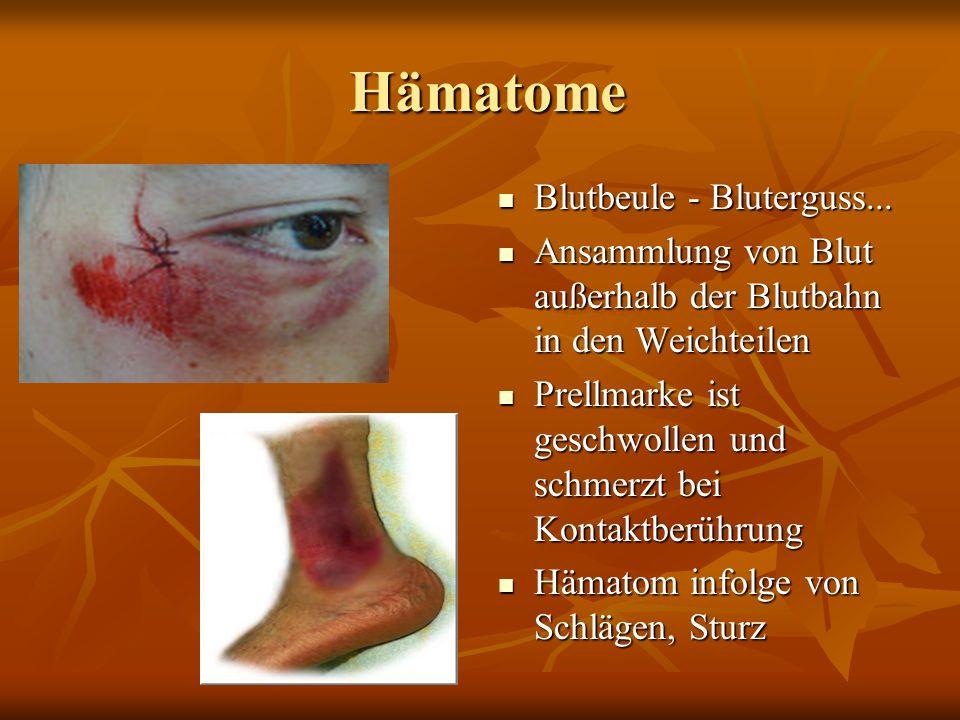 Hämatome Hämatome Blutbeule - Bluterguss...Blutbeule - Bluterguss...