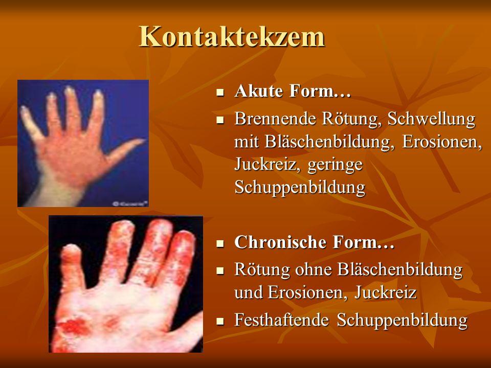 Allergie -Typen : Typ 3 und Typ 4 Typ 3 = Immunkomplex-Typ! (Reaktionszeit schon nach max.6-8 Std.) Typ 3 = Immunkomplex-Typ! (Reaktionszeit schon nac