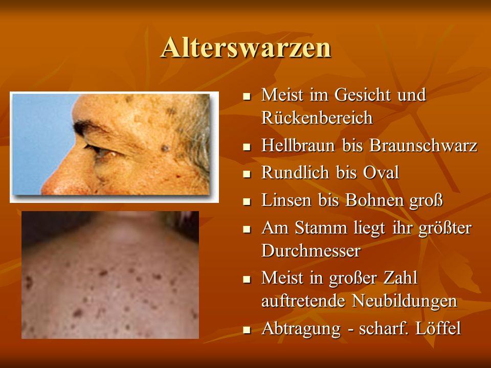 Warzen: Humane Papillomaviren ° Warze… Gutartige Gewebsneubildung der Oberhaut ° Warzenentstehung... ° Verminderte Immunabwehr, Verletzung der Haut un