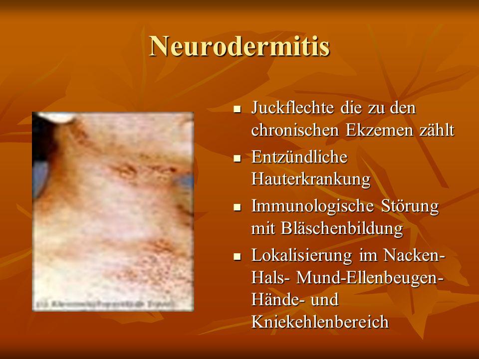 Neurodermitis Juckflechte die zu den chronischen Ekzemen zählt Juckflechte die zu den chronischen Ekzemen zählt Entzündliche Hauterkrankung Entzündliche Hauterkrankung Immunologische Störung mit Bläschenbildung Immunologische Störung mit Bläschenbildung Lokalisierung im Nacken- Hals- Mund-Ellenbeugen- Hände- und Kniekehlenbereich Lokalisierung im Nacken- Hals- Mund-Ellenbeugen- Hände- und Kniekehlenbereich