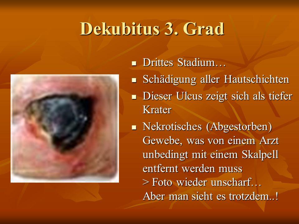 Dekubitus 2. Grad Dekubitus 2. Grad Zweites Stadium… Zweites Stadium… Teilweiser Verlust der Ober.- und Lederhaut, jedoch ohne Beteiligung der Unterha