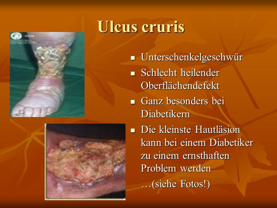 Dekubitus 4. Grad Dekubitus 4. Grad Viertes und letztes Stadium… Viertes und letztes Stadium… Hautverlust über die gesamte Hautdicke Hautverlust über