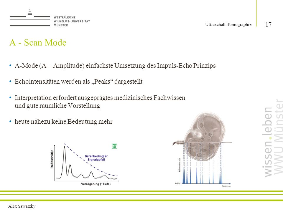 Alex Sawatzky A - Scan Mode 17 Ultraschall-Tomographie A-Mode (A = Amplitude) einfachste Umsetzung des Impuls-Echo Prinzips Echointensitäten werden al