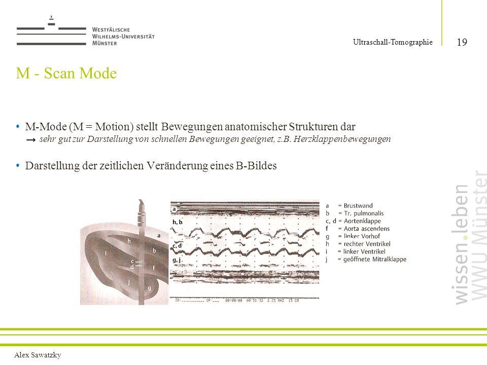 Alex Sawatzky M - Scan Mode M-Mode (M = Motion) stellt Bewegungen anatomischer Strukturen dar sehr gut zur Darstellung von schnellen Bewegungen geeign