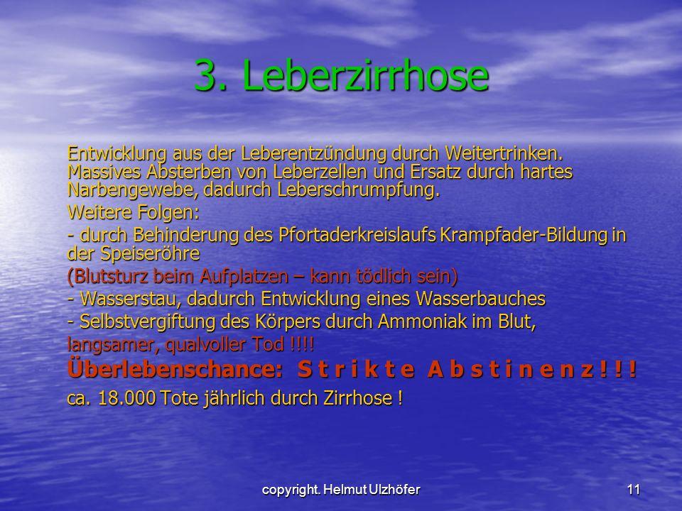 copyright. Helmut Ulzhöfer11 3. Leberzirrhose Entwicklung aus der Leberentzündung durch Weitertrinken. Massives Absterben von Leberzellen und Ersatz d