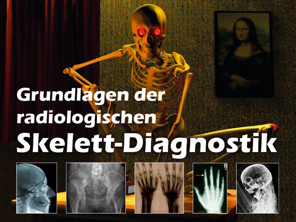 Grundlagen der radiologischen Skelett-Diagnostik 2008-09 Was ist eine Fraktur.