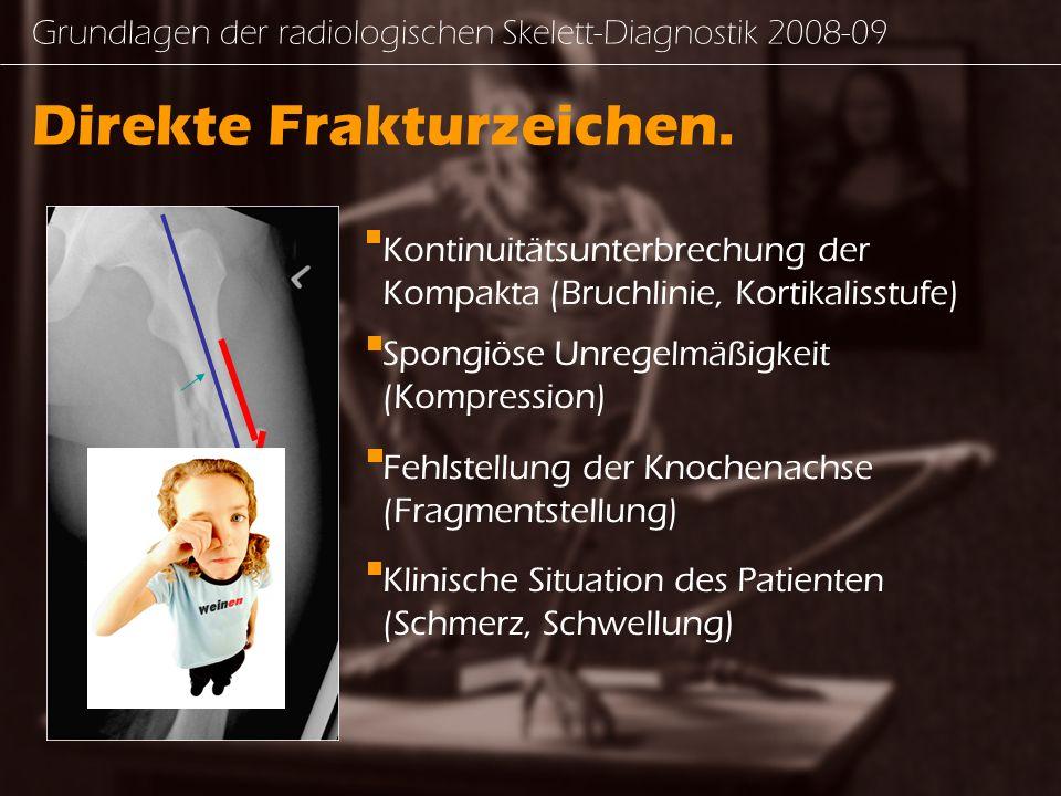 Grundlagen der radiologischen Skelett-Diagnostik 2008-09 Für weitere Bildbeispiele: WWW.COX.AT