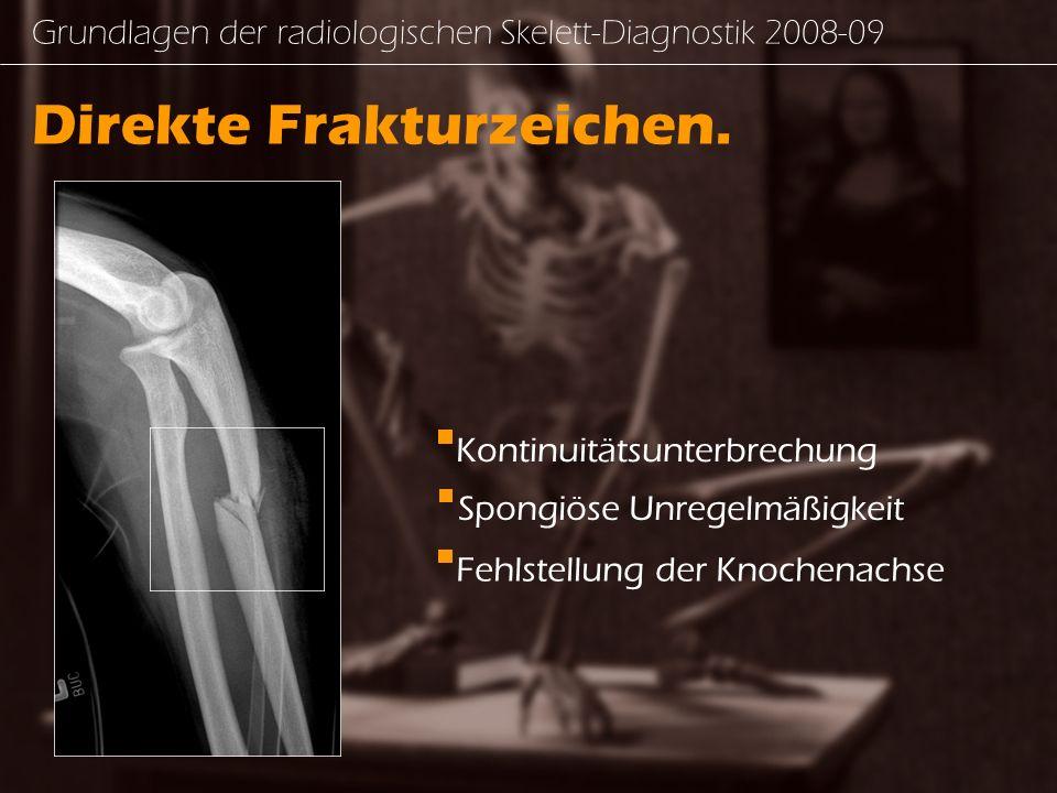 Grundlagen der radiologischen Skelett-Diagnostik 2008-09 Direkte Frakturzeichen.