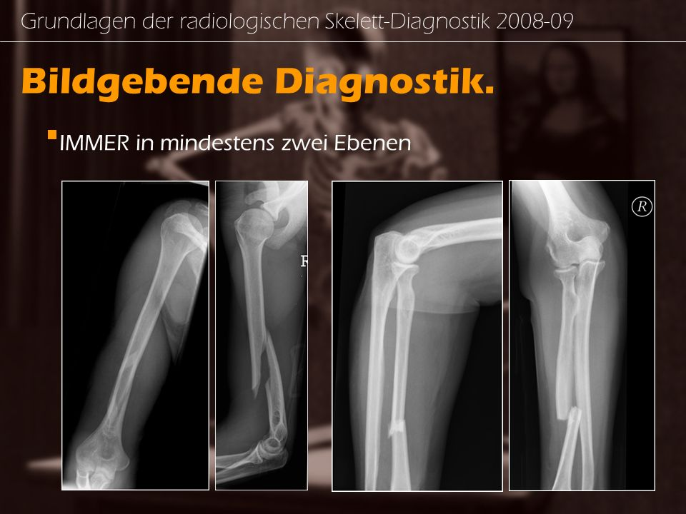 Grundlagen der radiologischen Skelett-Diagnostik 2008-09 Bildgebende Diagnostik.