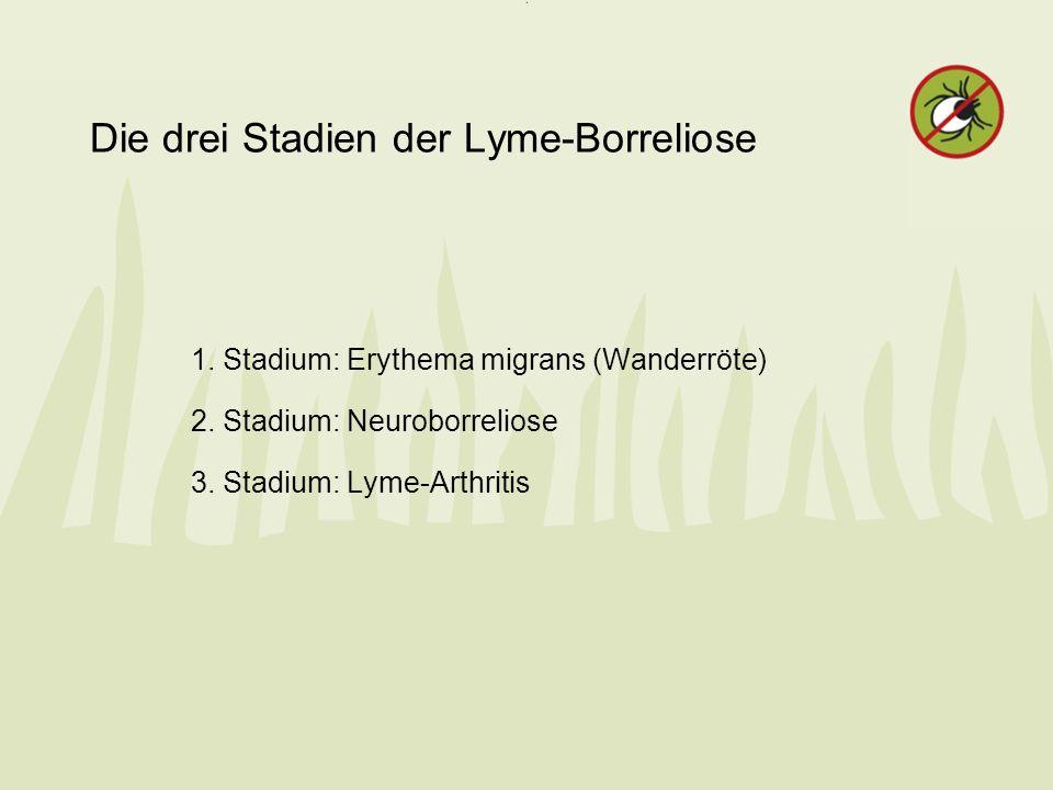 Die drei Stadien der Lyme-Borreliose 1. Stadium: Erythema migrans (Wanderröte) 2. Stadium: Neuroborreliose 3. Stadium: Lyme-Arthritis