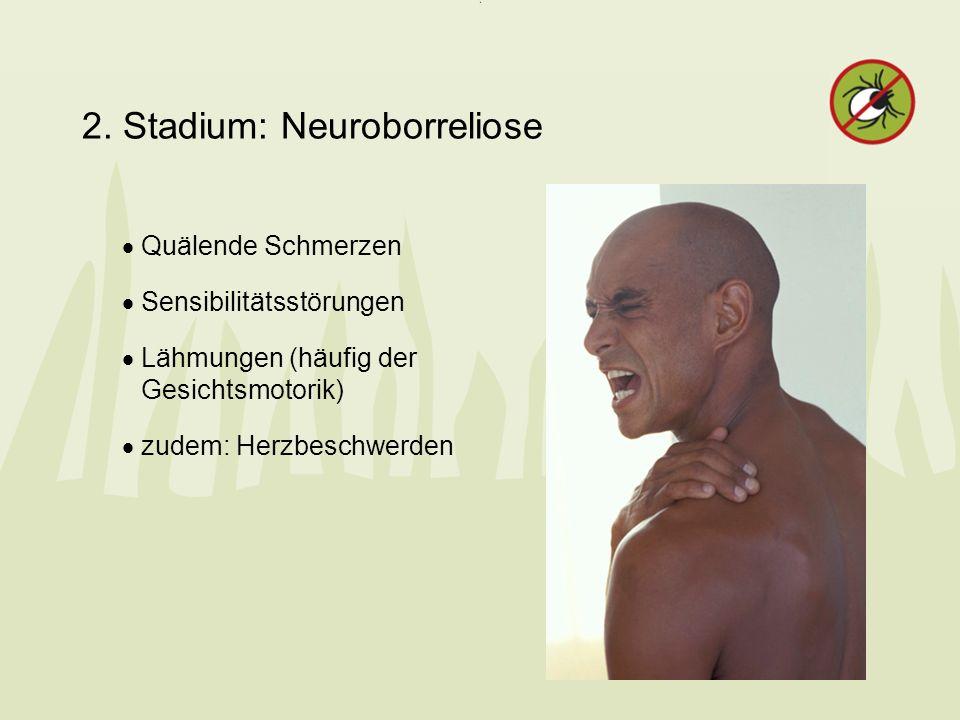 2. Stadium: Neuroborreliose Quälende Schmerzen Sensibilitätsstörungen Lähmungen (häufig der Gesichtsmotorik) zudem: Herzbeschwerden
