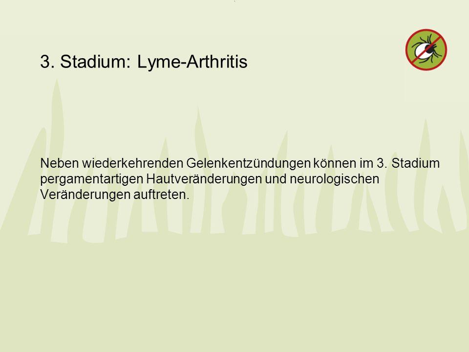 3. Stadium: Lyme-Arthritis Neben wiederkehrenden Gelenkentzündungen können im 3. Stadium pergamentartigen Hautveränderungen und neurologischen Verände