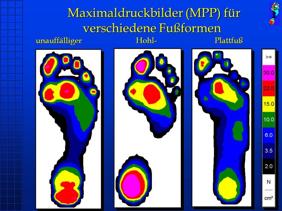 Copyright novel München 2004 Maximaldruckbilder (MPP) für verschiedene Fußformen unauffälliger Hohl- Plattfuß Maximaldruckbilder (MPP) für verschieden