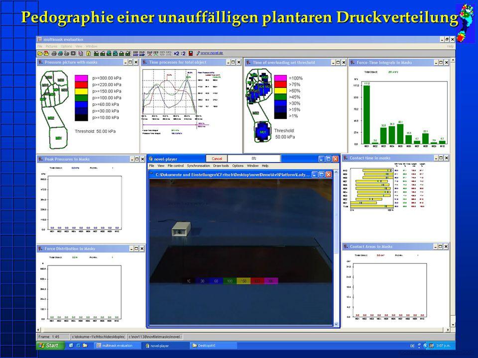 Copyright novel München 2004 Pedographie einer unauffälligen plantaren Druckverteilung