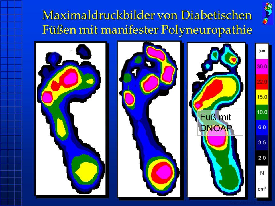Copyright novel München 2004 Maximaldruckbilder von Diabetischen Füßen mit manifester Polyneuropathie Fuß mit DNOAP