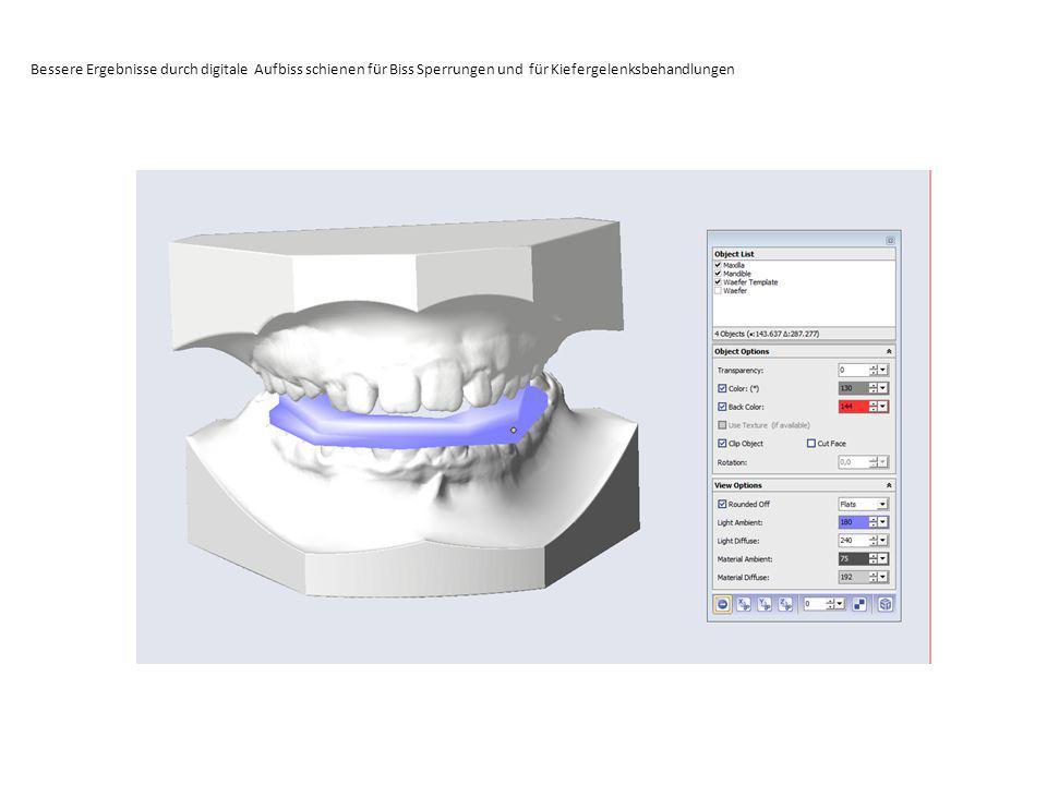 Bessere Ergebnisse durch digitale Aufbiss schienen für Biss Sperrungen und für Kiefergelenksbehandlungen