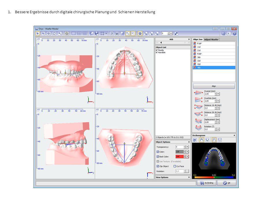 1.Bessere Ergebnisse durch digitale chirurgische Planung und Schienen Herstellung