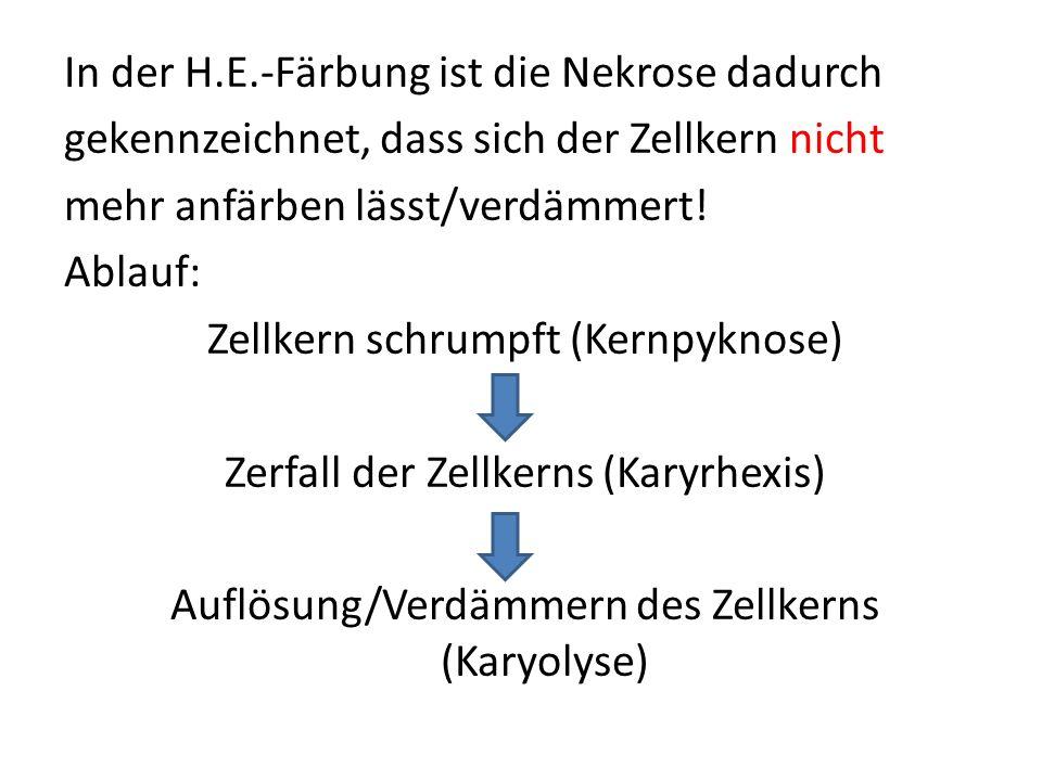 In der H.E.-Färbung ist die Nekrose dadurch gekennzeichnet, dass sich der Zellkern nicht mehr anfärben lässt/verdämmert! Ablauf: Zellkern schrumpft (K
