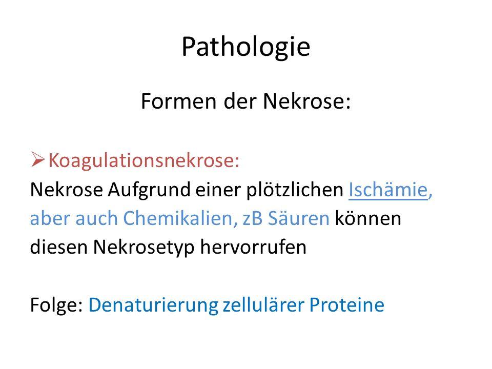 Pathologie Formen der Nekrose: Koagulationsnekrose: Nekrose Aufgrund einer plötzlichen Ischämie, aber auch Chemikalien, zB Säuren können diesen Nekros