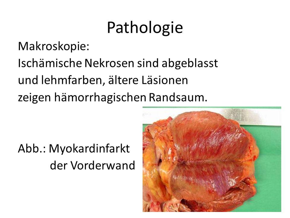Pathologie Makroskopie: Ischämische Nekrosen sind abgeblasst und lehmfarben, ältere Läsionen zeigen hämorrhagischen Randsaum. Abb.: Myokardinfarkt der