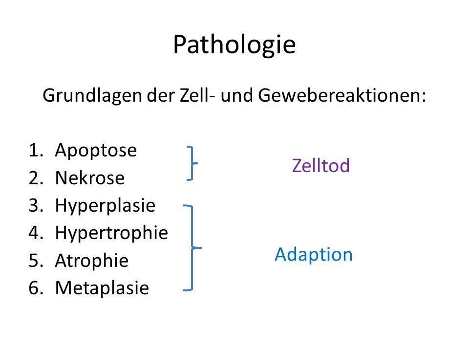 Pathologie Grundlagen der Zell- und Gewebereaktionen: 1.Apoptose 2.Nekrose 3.Hyperplasie 4.Hypertrophie 5.Atrophie 6.Metaplasie Adaption Zelltod