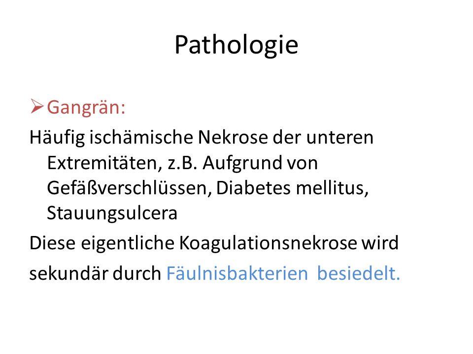 Pathologie Gangrän: Häufig ischämische Nekrose der unteren Extremitäten, z.B. Aufgrund von Gefäßverschlüssen, Diabetes mellitus, Stauungsulcera Diese