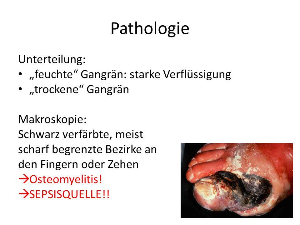 Pathologie Unterteilung: feuchte Gangrän: starke Verflüssigung trockene Gangrän Makroskopie: Schwarz verfärbte, meist scharf begrenzte Bezirke an den