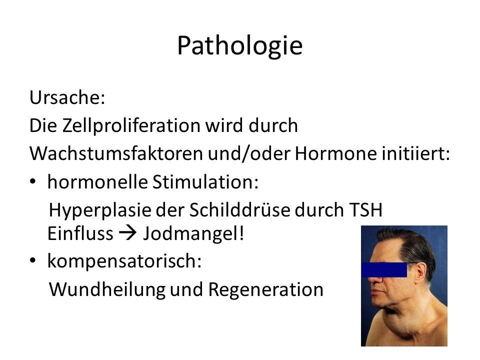 Pathologie Ursache: Die Zellproliferation wird durch Wachstumsfaktoren und/oder Hormone initiiert: hormonelle Stimulation: Hyperplasie der Schilddrüse