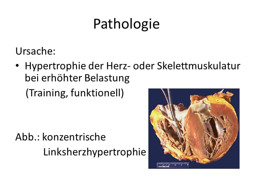 Pathologie Ursache: Hypertrophie der Herz- oder Skelettmuskulatur bei erhöhter Belastung (Training, funktionell) Abb.: konzentrische Linksherzhypertro